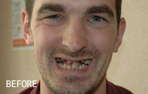 Smile Studio Sutton - Implants and Veneers Before Case 01