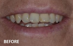 Smile Studio Sutton - Veneers Before Case 02