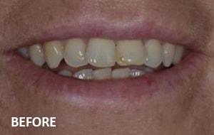 Smile Studio Sutton - Veneers Before Case 02