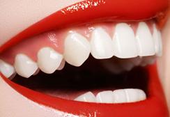Fillings Sutton - Teeth