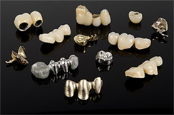 Dental Crowns Sutton - What is a dental bridge