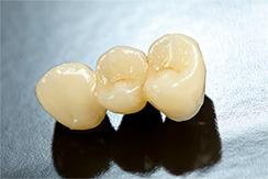 Dental Crowns Sutton - Dental bridge