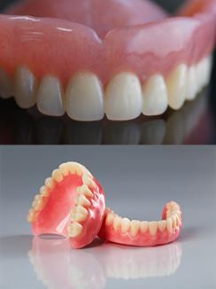 Dentures Sutton - Dentures