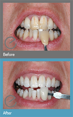 Tooth Whitening Sutton - Teeth before and after