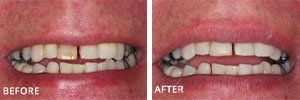 Fillings Sutton - Teeth before and after 1