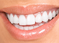 Fillings Sutton - Smile after the treatment /
