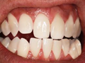 Dental Crowns Sutton - Smile after the treatment /