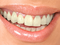 Dr. Suril Amin Sutton - Smile before the treatment /