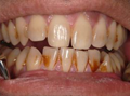 PRGF Sutton - Smile before the treatment /