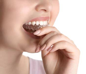 Invisalign Braces in Wallington area