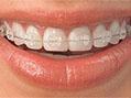 Orthodontics Sutton - invisalign Teeth