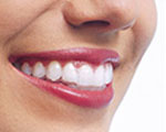 Orthodontics Sutton - Invisalign Step 3