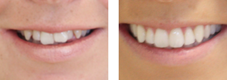 Orthodontics Sutton - Invisalign before and after1