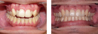 Orthodontics Sutton - Invisalign before and after2