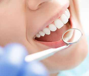 Professional teeth whitening form Sensational Smile removes stains for a whiter, brighter smile.