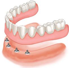 Advanced Services Sutton - Implant retained denture
