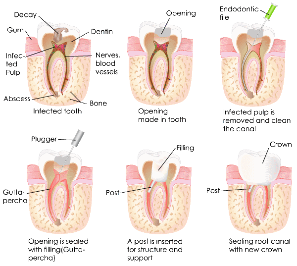 Root Canal Treatment Sutton - Tooth process chart2