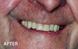 Smile Studio Sutton - Denture After Case 01