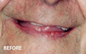 Smile Studio Sutton - Denture Before Case 01