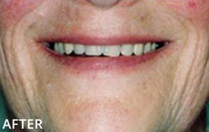 Smile Studio Sutton - Denture After Case 03