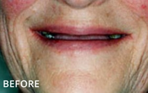 Smile Studio Sutton - Denture Before Case 03
