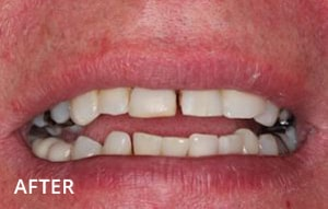Smile Studio Sutton - White Filling to Mask a Discoloured Tooth After Case