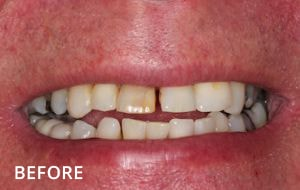 Smile Studio Sutton - White Filling to Mask a Discoloured Tooth Before Case