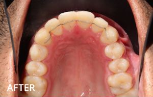 Smile Studio Sutton - Orthodontics After Case 01