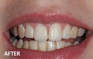 Smile Studio Sutton - Orthodontics After Case 02