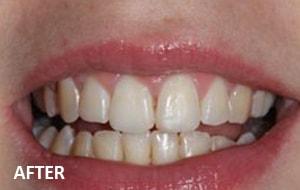Smile Studio Sutton - Orthodontics After Case 02