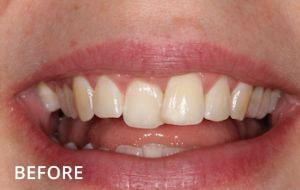 Smile Studio Sutton - Orthodontics Before Case 02