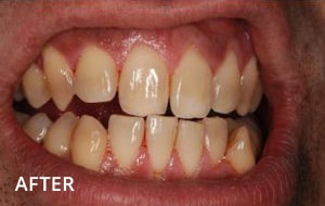 Smile Studio Sutton - Stain Removal After Case 01