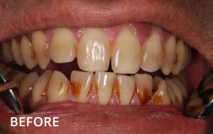 Smile Studio Sutton - Stain Removal Before Case 01