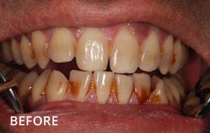 Smile Studio Sutton - Stain Removal Before Case 01