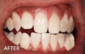 Stain removal and tooth bleaching case 2 After, Sensational Smiles