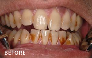 Stain removal and tooth bleaching case 2 Before, Sensational Smiles