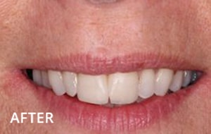 Smile Studio Sutton - Tooth Straitening After Case