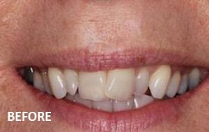 Smile Studio Sutton - Tooth Straitening Before Case