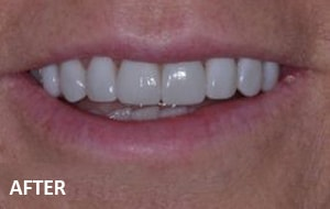 Smile Studio Sutton - Veneers After Case 02