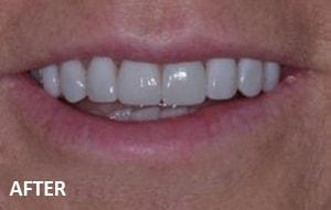 Smile Studio Sutton - Veneers After Case 02