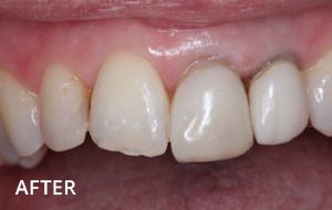 Smile Studio Sutton - Denture After Case 02