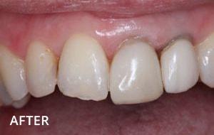 Smile Studio Sutton - Denture After Case 02
