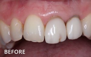 Smile Studio Sutton - Denture Before Case 02