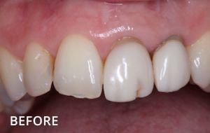 Smile Studio Sutton - Denture Before Case 02