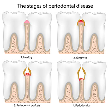 Hygiene Sutton - Stages of periodontal