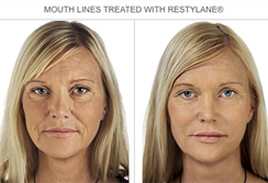 Dermal Fillers Sutton - Before and after the treatment
