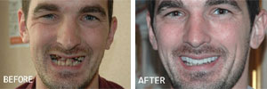 Veneers Sutton - Teeth before and after 1