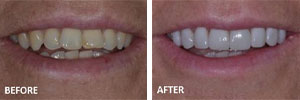 Veneers Sutton - Teeth before and after 3