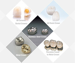 Dental Crowns Sutton - Types of Crown
