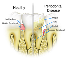 Hygiene Sutton - What is gum disease